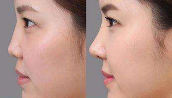 Mũi hếch là gì? Cách chỉnh sửa cho phù hợp với khuôn mặt