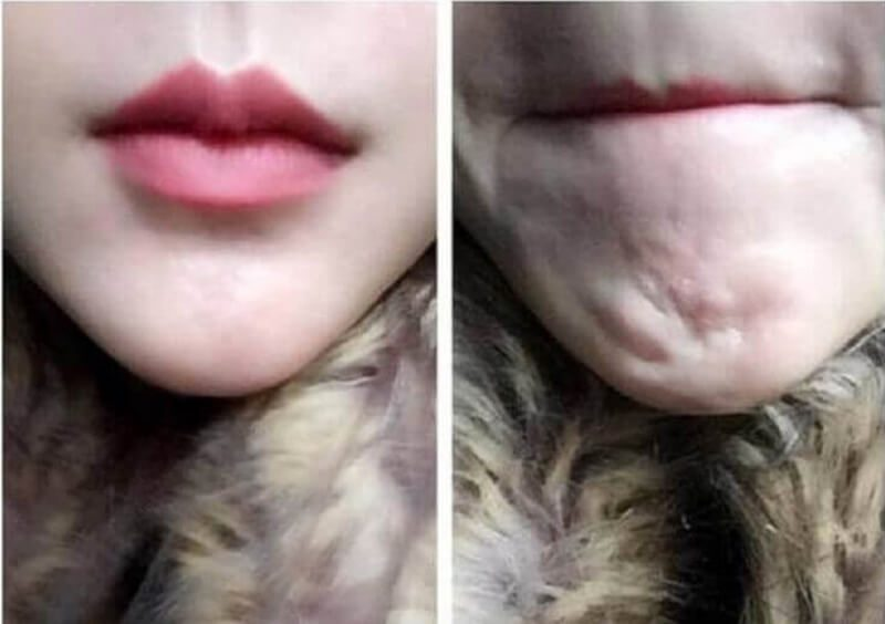 Đừng hủy hoại vẻ đẹp của khuôn mặt bằng cách tiêm filler giá rẻ